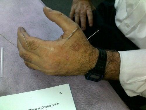 Acupunctura, punctul ling gu stimulat