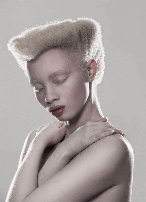 Albinismul afectează un fotomodel