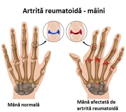 Apa de vinete previne artrita reumatoidă a mâinilor