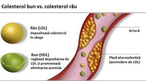 Apa de vinete ajută la reducerea colesterolului