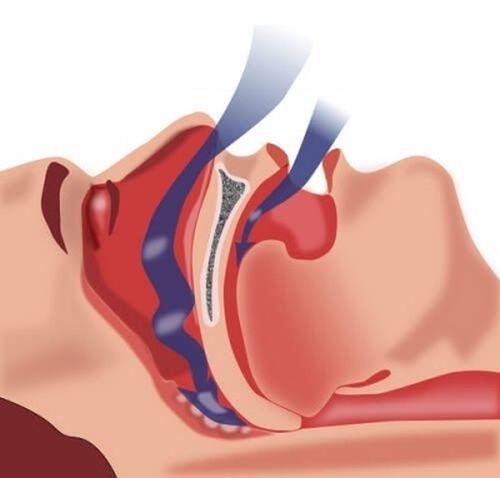 Apneea în somn este o boală gravă