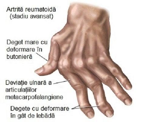 Artrita mâinilor, deformări ale oaselor