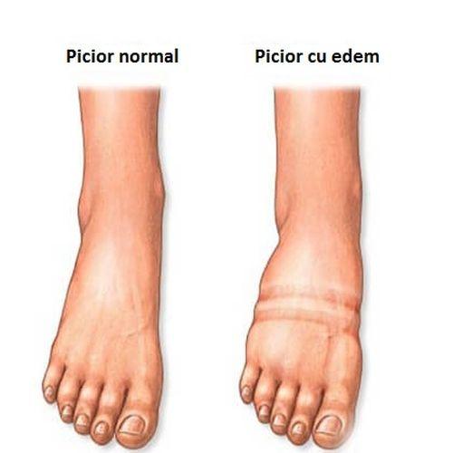 Picior care a dezvoltat edem
