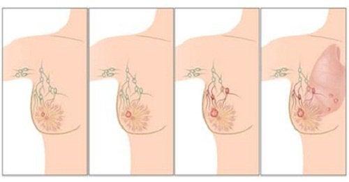 Cancerul de sân nu este detectat la timp