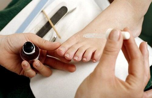 Cum tratezi unghiile încarnate de la picioare