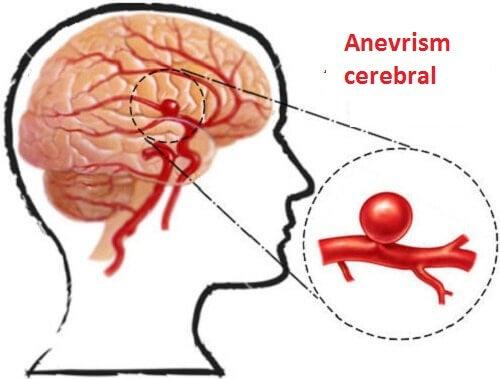 Detectarea anevrismelor și prevenirea lor