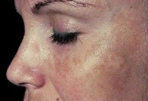 6 remedii pentru petele maronii de pe piele