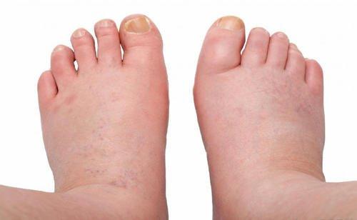 am picioarele umflate