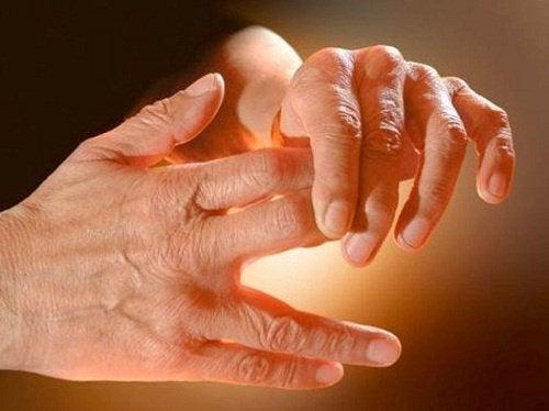 Furnicături în mâini