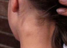 Ganglionii limfatici inflamați