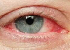 Ochii iritați sunt roșii