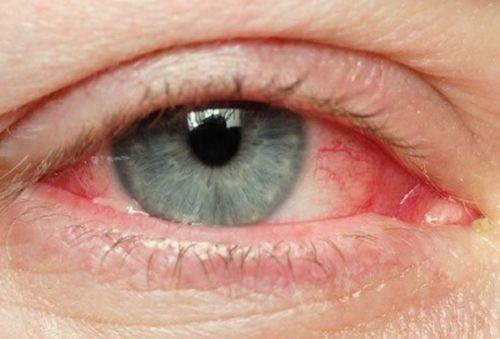 Ochii iritați – remedii naturale eficiente