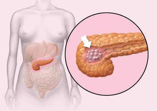 Sfaturi pentru a avea un pancreas sănătos