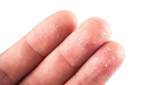 Piele uscată pe lista de simptome de deshidratare