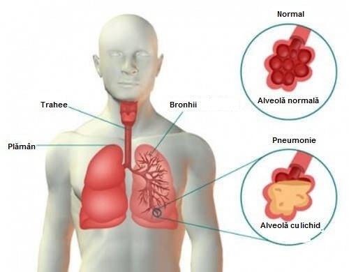 Pneumonie, reprezentare grafică a plămânului