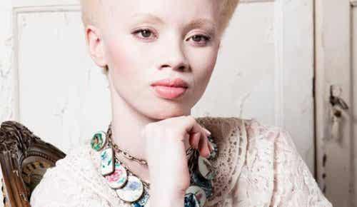 Albinismul: povestea fotomodelului Thando Hopa