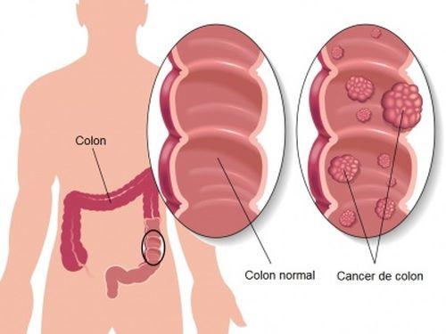 5 măsuri pentru prevenirea cancerului de colon