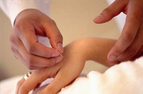 Punctul ling gu în palma ta
