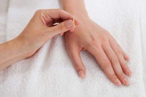 Punctul ling gu în acupunctură