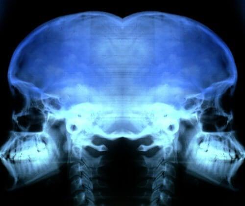 Radiografie pentru prevenirea și tratarea osteoporozei