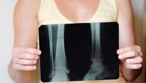 Simptome ale cancerului osos primar surprinse la radiografie