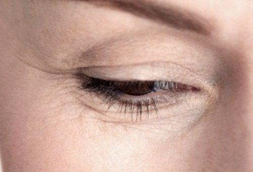 Simptome de deshidratare pe ten