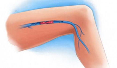 Tromboza venoasă: simptome și prevenire
