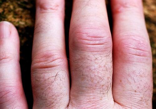 Artrita reumatoidă poate cauza deformări ale degetelor