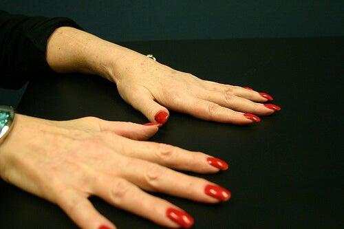 Artrita reumatoidă poate cauza o durere cumplită