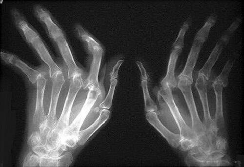 Tratamente naturiste pentru artrita reumatoidă