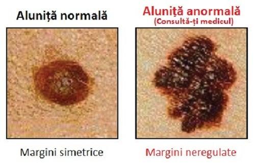 Cancerul de piele poate provoca apariția unor alunițe anormale