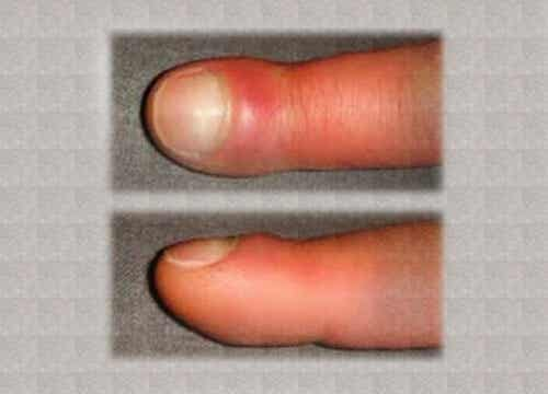 Degetele umflate - cauze și remedii
