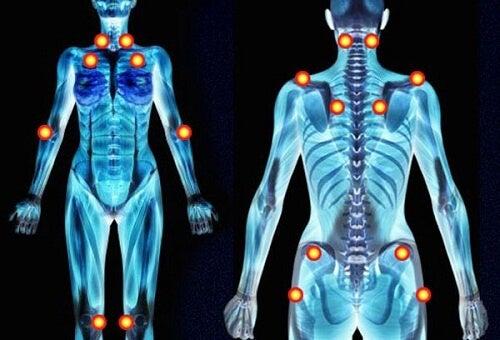 Fibromialgia provoacă dureri în tot corpul