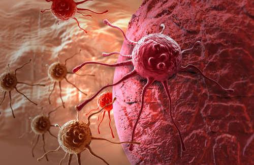 În tratarea cancerului se folosește ghimbir