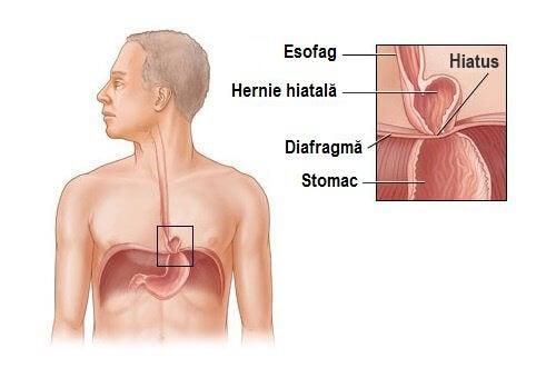 Hernia hiatală poate fi tratată