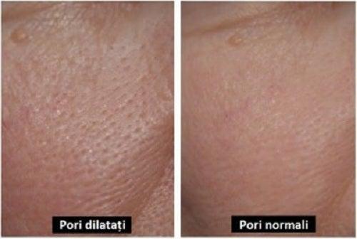 3 măști naturale pentru porii dilatați