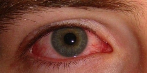 Ochii roșii - ce remedii naturale există?