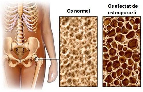 Osteoporoza este o afecțiune foarte periculoasă
