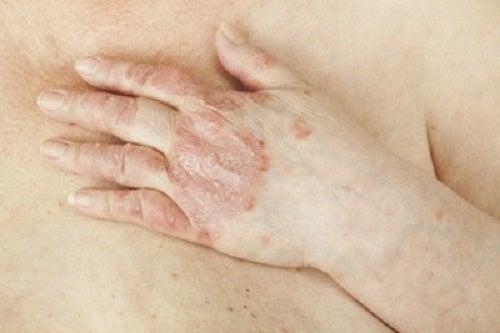 Psoriazisul este o boală de piele