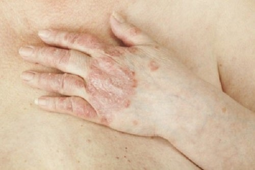 boli de piele psoriazis simptome depresie