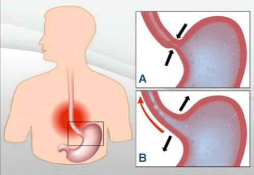 Refluxul acid poate fi tratat cu remedii naturale