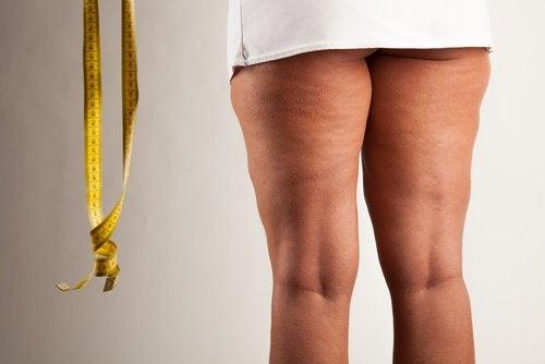 Celulita afectează numeroase femei