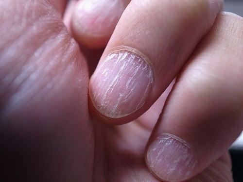 Ciuperca unghiei sau onicomicoza
