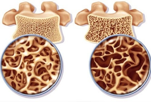 Calciul previne osteoporoza la menopauză