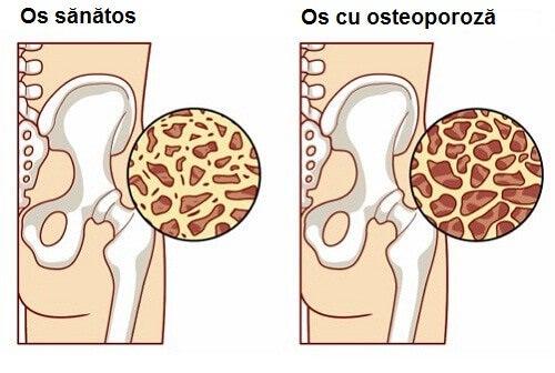 Alimente care reduc riscul de osteoporoză