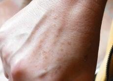 Petele de pe mâni sunt un semn al îmbătrânirii
