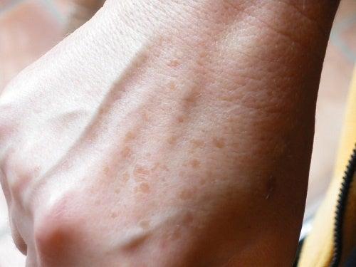 Cum să diminuezi petele de bătrânețe și pistruii de pe mâini