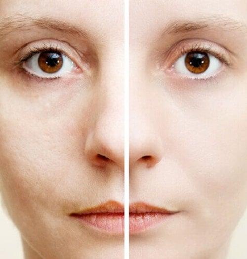 Există multe remedii pentru petele de pe piele