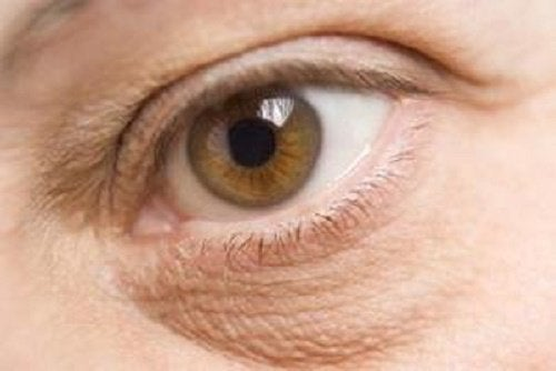 Pungile de sub ochi sunt o problemă foarte inestetică