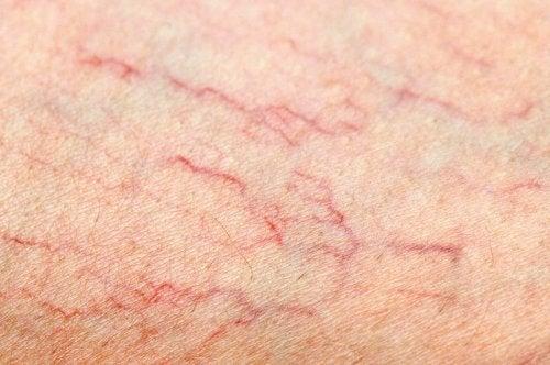 Sfaturi utile pentru a preveni varicele